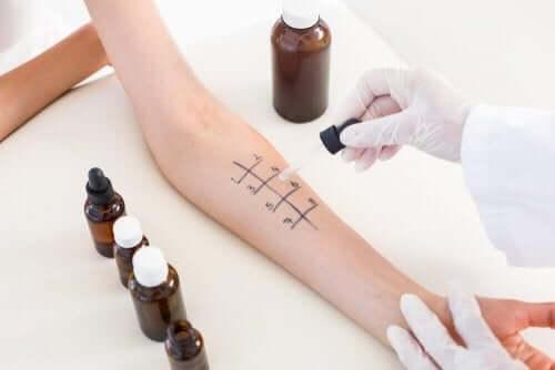 ilaçlar için alerji testleri
