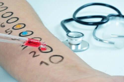 prik alerji testleri