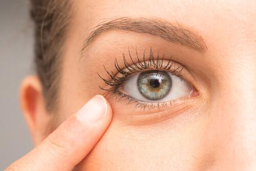 Göz Altındaki Koyu Renkli Halkalar ve Onları Azaltmak İçin Ev Tedavileri