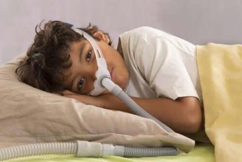 Çocuklarda Obstrüktif Uyku Apnesi