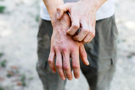 Kontakt Dermatit Tedavisinde 6 Doğal İlaç