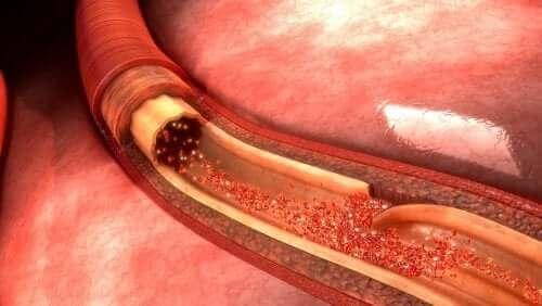 Aort Diseksiyonu Nedir ve Neden Ortaya Çıkar?