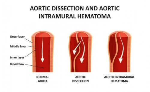 aort diseksiyonu