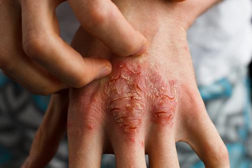 kuruluktan çatlamış el ve psöriatik artrit