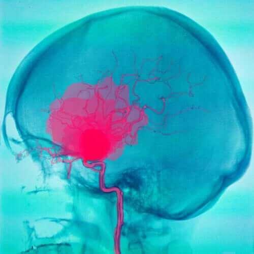 renkli beyin filmi ve beyin felci