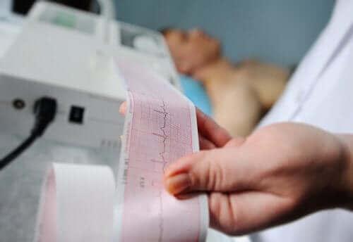 Elektrokardiyogram veya EKG: Yorumlamak için Adımlar