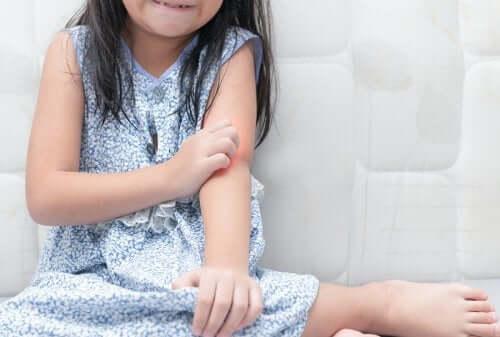 Çocuklarda Sedef Hastalığı ile Nasıl Başa Çıkılır