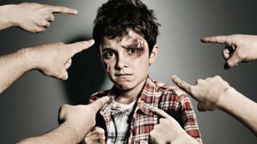 suratı yaralı çocuk onu gösteren parmaklar