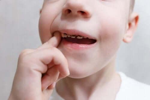 çürümüş çocuk dişleri