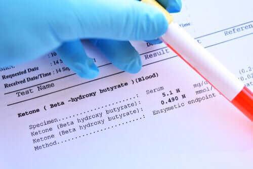 kan testi sonucu
