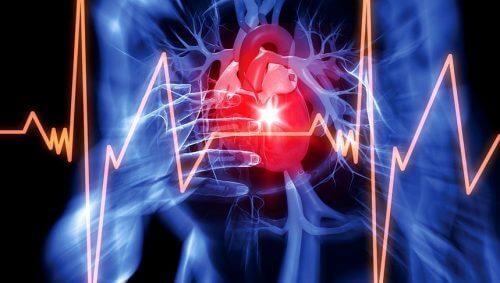 perikardiyal efüzyon kalp ritmi