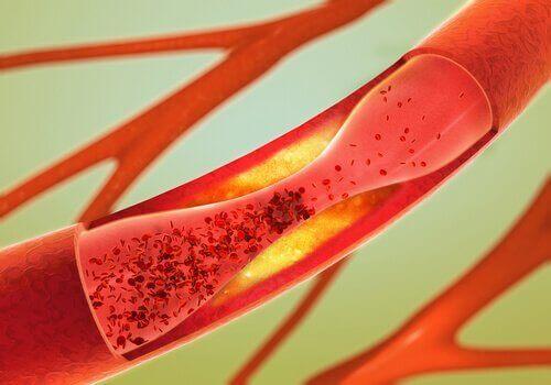 arterlerdeki tıkanıklığı açmak