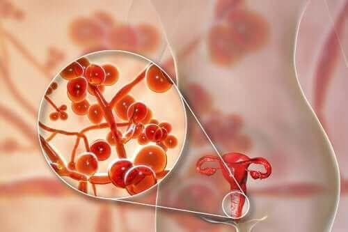 Genital Mikoplazma: Nedenleri, Belirtileri ve Tedavisi