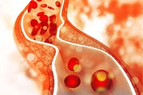 Kandaki kolesterol seviyelerini temsil eden bir resim.