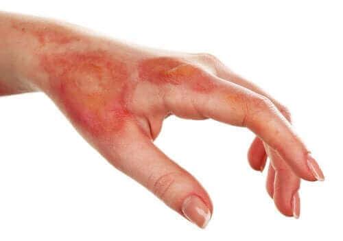 yüzeysel yanık tedavisi