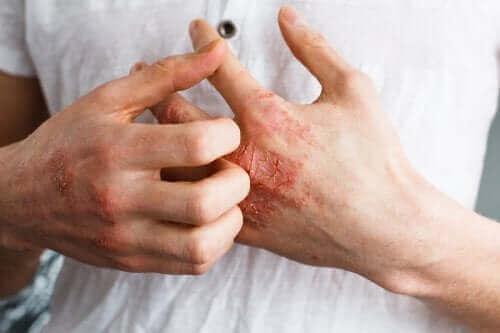 Atopik Dermatit Nedir?