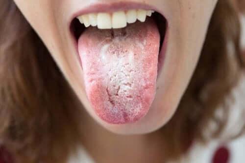 Dili beyaz olan insan ve dişleri