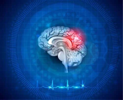 beyin metastazları ilüstrasyon