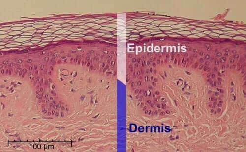 Derinin dermiş ve epidermis tabakalarını gösteren bir illüstrasyon.