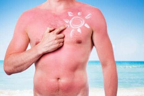 Güneşin cildinize zararları