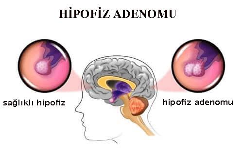 Hipofiz Adenomları: Sebepleri ve Semptomları