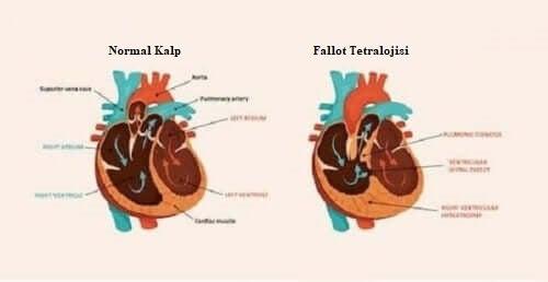 konjenital kalp hastalığı ve normal kalp