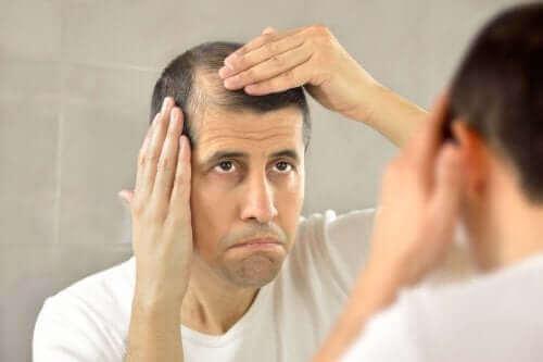 Dökülen saçları ile ilgili üzüntülü olan bir adam.