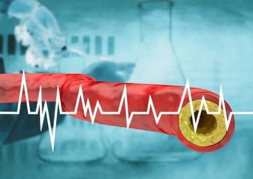 Diyet Yoluyla Yüksek Kolesterolü Kontrol Altında Tutun