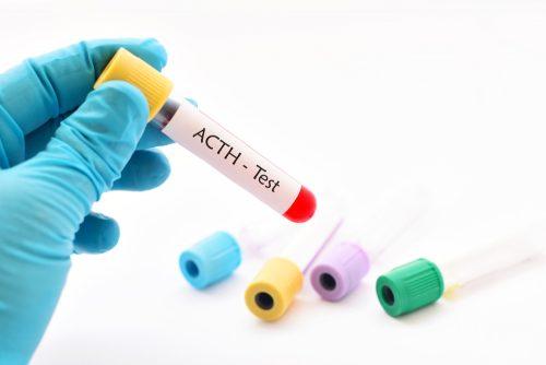 ACTH testi için doldurulmuş tüp