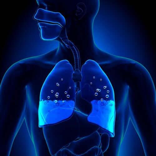 Akciğer Ödemi: Belirtileri ve Nedenleri
