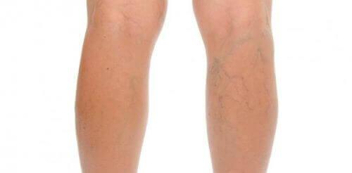 Bacağında varisli damarlar olan bir kişi.