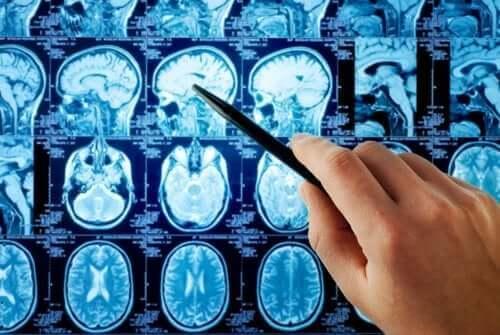 Beyin mrlarına bakan doktor