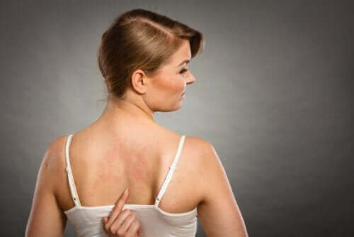 Woman with a bubble on her back because of additives