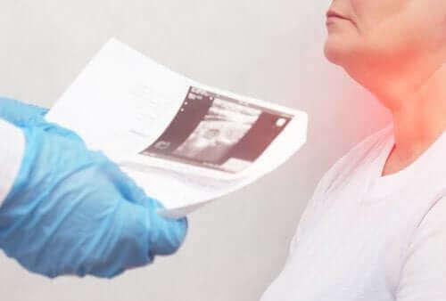 Tiroid Nodülleri: Belirtileri ve Nedenleri