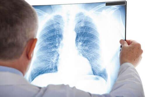 Bir akciğer röntgenine bakan bir doktor.