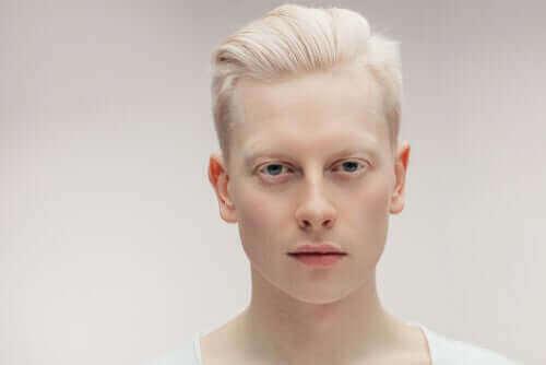 Albinizm Hakkında Bilmeniz Gereken Her Şey