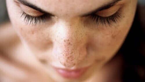 Yüzünde çiller olan bir kadın.