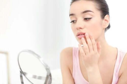 kadın ayna uçuk dudak uçuğun özellikleri