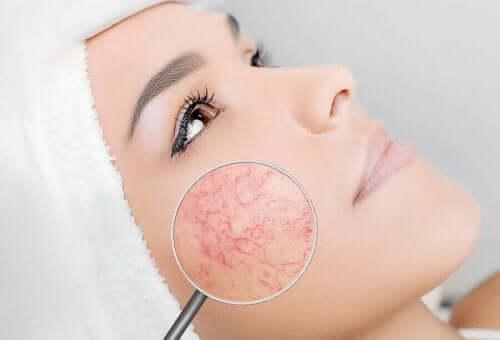 kadın yüz büyüteç gül hastalığı