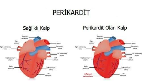 Kalp zarı iltihabı olan kalp ile sağlıklı kalp arasındaki farklar