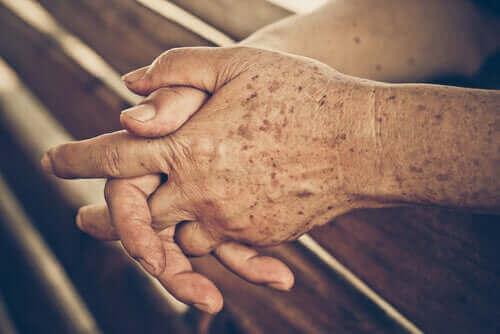 yaşlı lekeli insan elleri