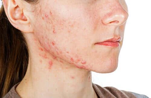 Akne dolayısıyla yüzünde yaralar oluşmuş bir kadın.