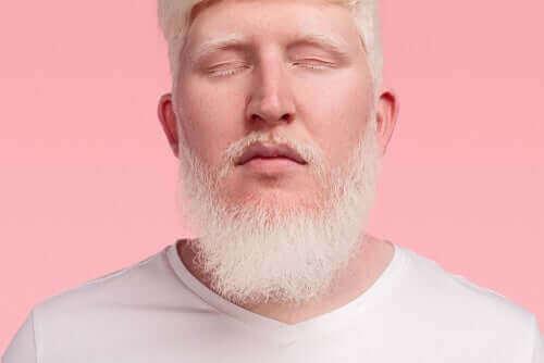 albinizm adam beyaz sakal