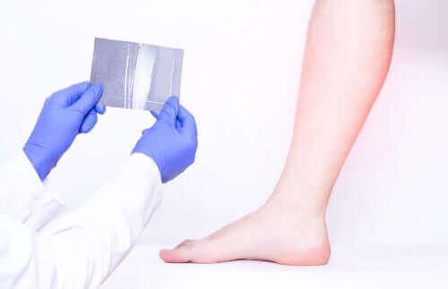 bacak ağrısı için doktora giden kadın