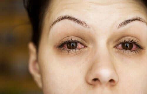 göz kuruluğu yaşayan kadın