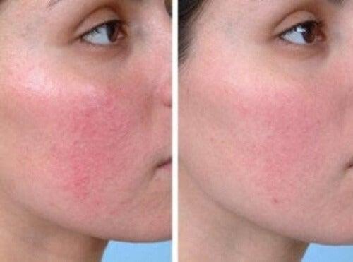 Gül hastalığı olan bir kadının önceki ve sonraki hallerini gösteren iki fotoğraf.