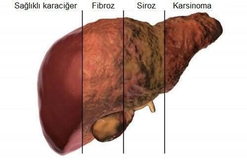normal ve hasta karaciğer görseli