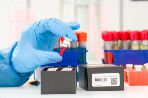 Koronavirüs Tespiti: PCR Testi Nedir?