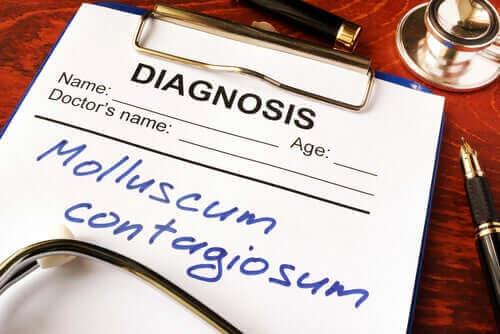 Molluskum Kontagiozum Hastalığı Nedir?