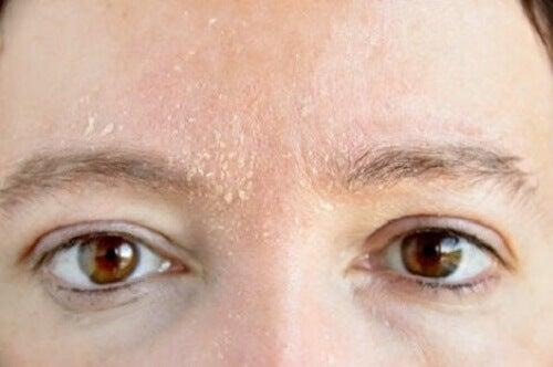 Yüzündeki deri pullu hale gelmiş bir kadın.